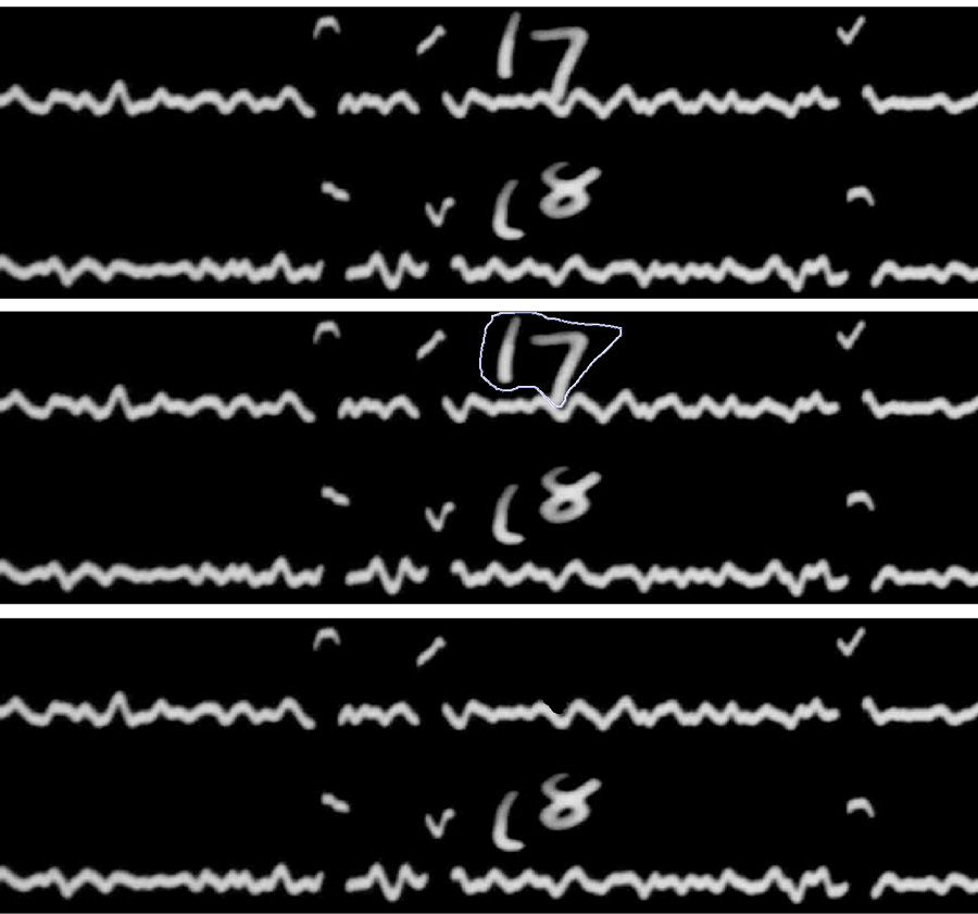 Figure 3. Top: A section of a seismogram showing traces with the hour note (17 and 18). The first timing note is selected (middle) and then removed (bottom).
