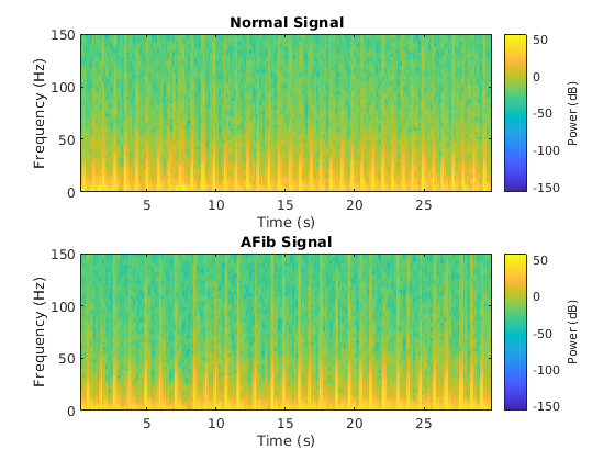 Classify ECG Signals Using Long Short-Term Memory Networks - MATLAB