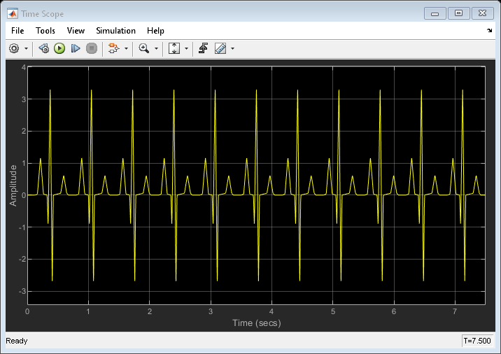 Use Peak Finder to Find Heart Rate from ECG Input - MATLAB