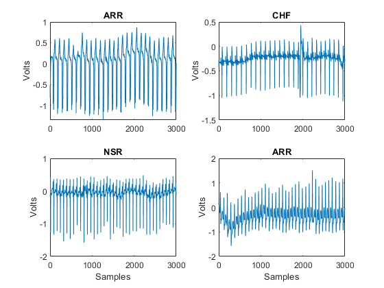 Signal Classification Using Wavelet-Based Features and Support